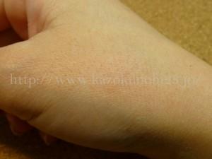 乾燥がすすんだ肌や毛ぞり後の肌に酸ピーリングすると真っ赤になりました