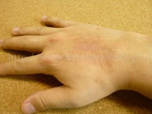 手の甲がアトピーのような症状になってしまった、肌の弱いうちの旦那さん。しみるためニベアやハンドクリームなどをつけることができず、かさかさになってしまっていました。