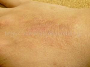 かさかさになってしまった手の甲。もともとアレルギー体質のため、時たまこんなことが起きてしまいます。