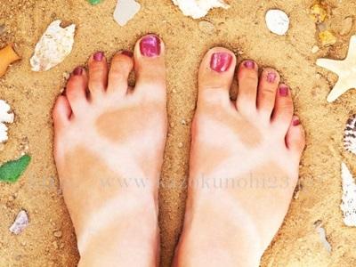 お悩み①日焼けしちゃった!いつもより美白効果の高い化粧水に変えるべき?のイメージ画像。サンダル焼けしてます。