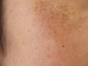 シミの種類:肝斑