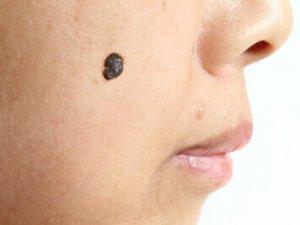 シミの種類:脂漏性角化症