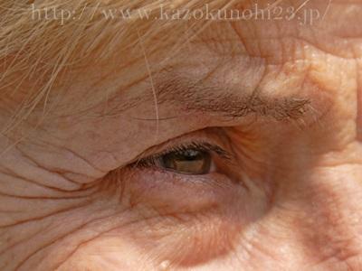 眼窩脂肪のふくらみが原因となる黒クマ。涙袋ではない位置にぷくっとなるのがそれです。