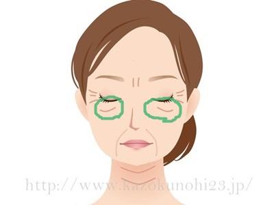 目元のたるみは、目の下などに顕著に表れます。ゴルゴライン(ゴルゴ線)などのことを言います。