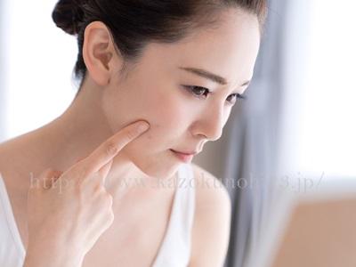 大人ニキビの原因は乾燥肌による角質の蓄積!保湿&角質ケアで大人ニキビを改善