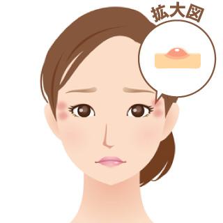 脂漏性角化症(老人性イボ)