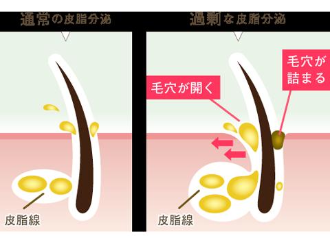 皮脂の過剰分泌
