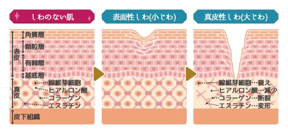 肌の乾燥による小じわを防ぐ