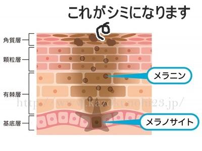 シミの原因はメラニンが表皮に残ってしまうこと。画像は、メラニンが残ってしまってシミが表面化している画像です。