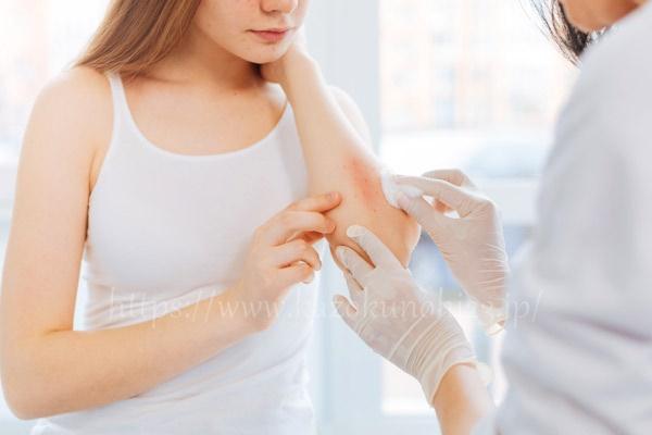 アトピー肌は治療とともにスキンケアが重要