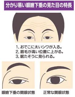 眼瞼下垂はスキンケアで改善しない