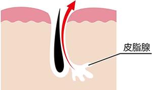 ホルモンバランスの乱れで皮脂が増える