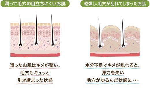 肌の乾燥によって毛穴が開く
