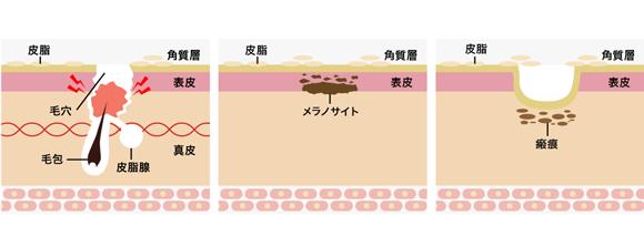ニキビ跡の種類と原因